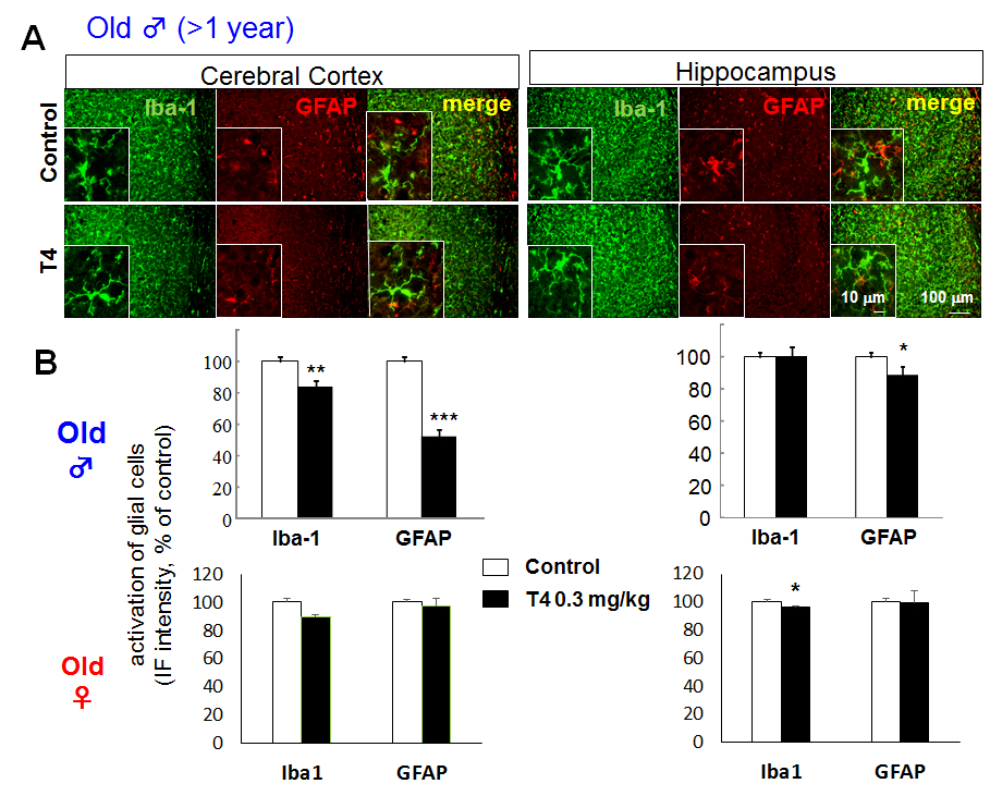 Figure 2. Glial activation in hyperthyroid model is not observed in aged mice even in male. A. Differential glial activation in cerebral cortex and hippocampus of T4-treated hyperthyroid model and control (vehicle-treated) mice in old (> 1 year old) male. There is no activation in glial cells in old male mice compared to young male mice (Fig. 1). B. The relative fluorescence intensity of Iba-1 and GFAP immunoreactivity in cerebral cortex and hippocampus of old male (upper panels) and female (lower panels). *p<0.05, **p<0.01, ***p<0.005 vs control (Sheffe's test)