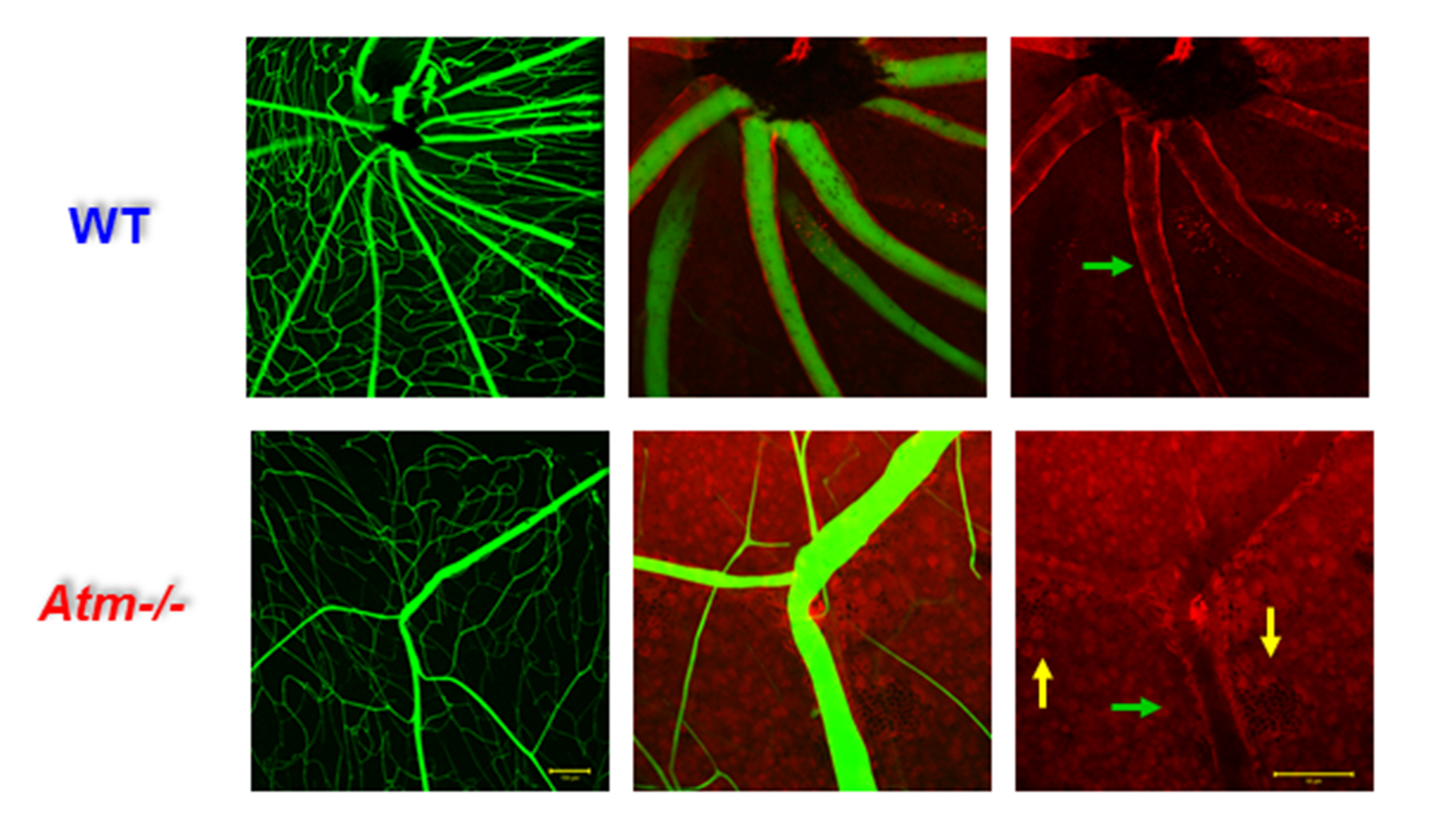 Figure 3. Attenuated blood vessels in retinas of ATM−/− mice. Flat-mount retinas of 2-month-old WT (left panel) and ATM−/− (right panel) mice imaged with a fluorescent microscope following intracardial perfusion with albumin-conjugated FITC albumin-conjugated FITC and Alexa 633 to selectively labelled the arteries. Constricted arteries are indicated by green arrows, and microhaemorrhages are indicated by yellow arrows